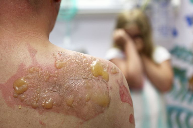 peeling skin from radiation therapy
