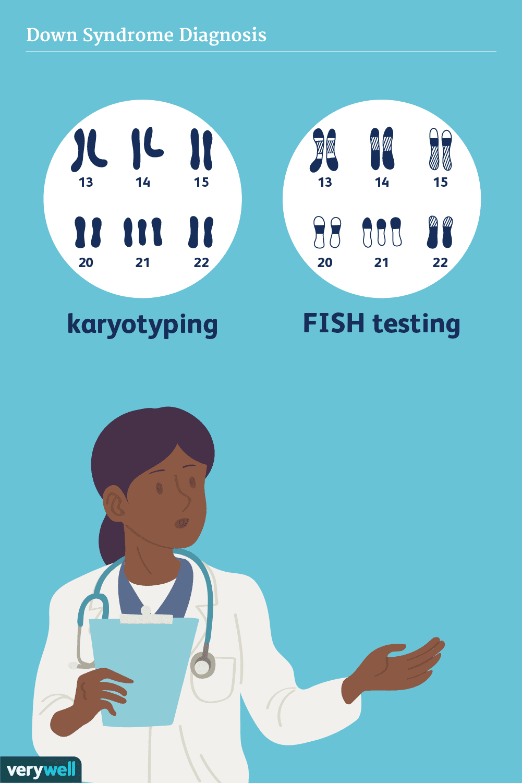 down syndrome diagnosis