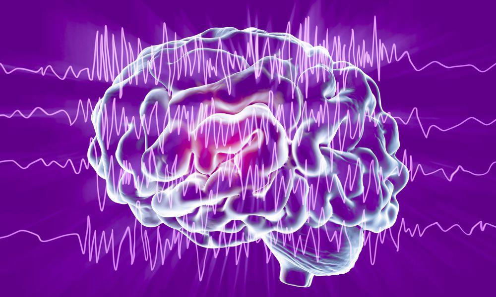 Brain and brain waves in epilepsy, illustration