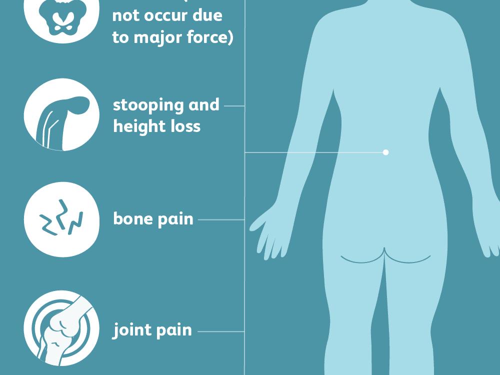 do+i+have+osteoporosis