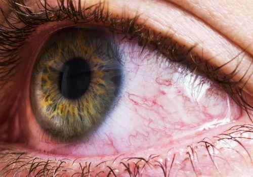 close up of a bloodshot eye