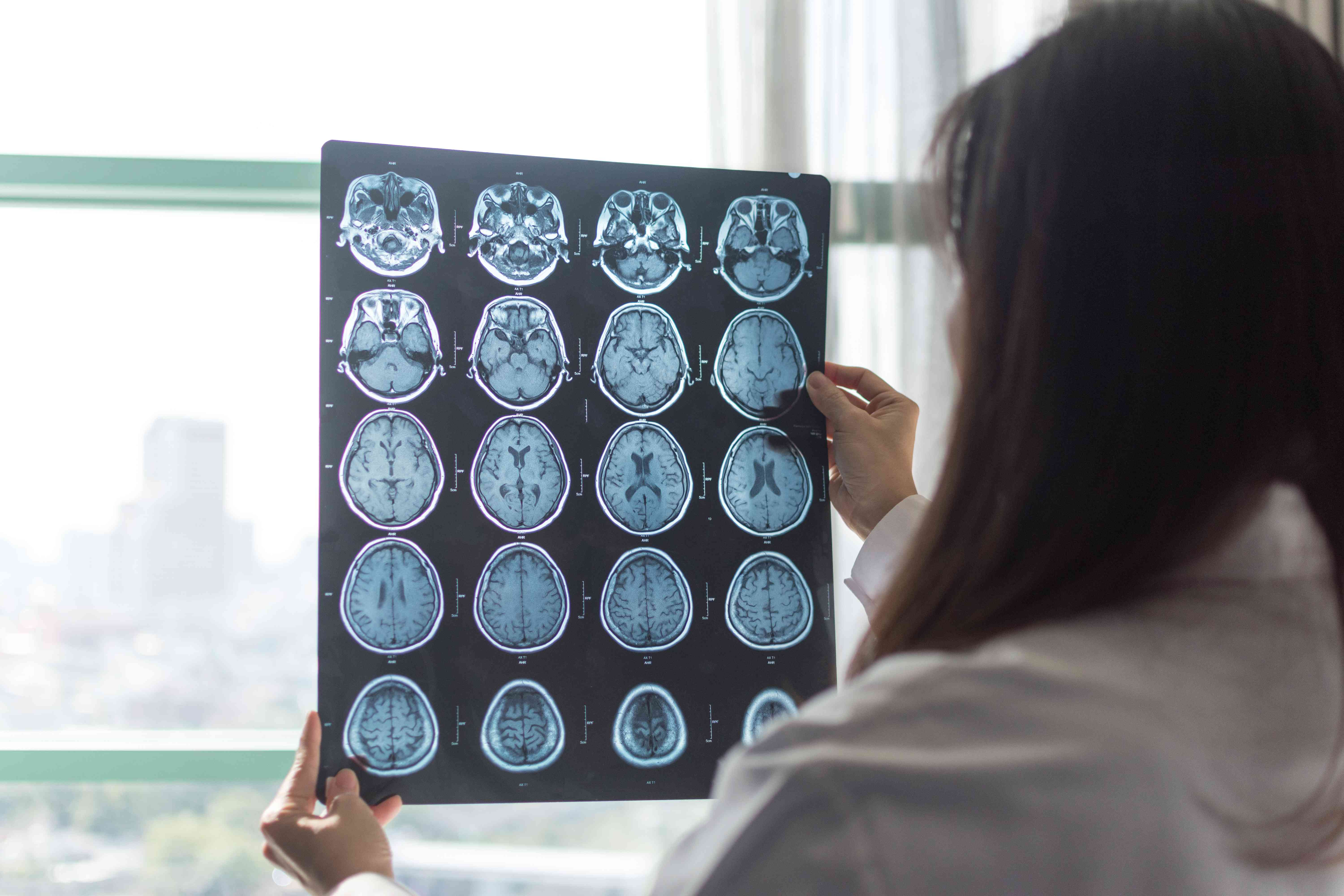 MRI digital x-ray of brain with radiologist doctor oncology working in clinic hospital. Medical healthcare concept.