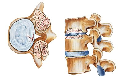 Top-and side-view illustration of spinal stenosis
