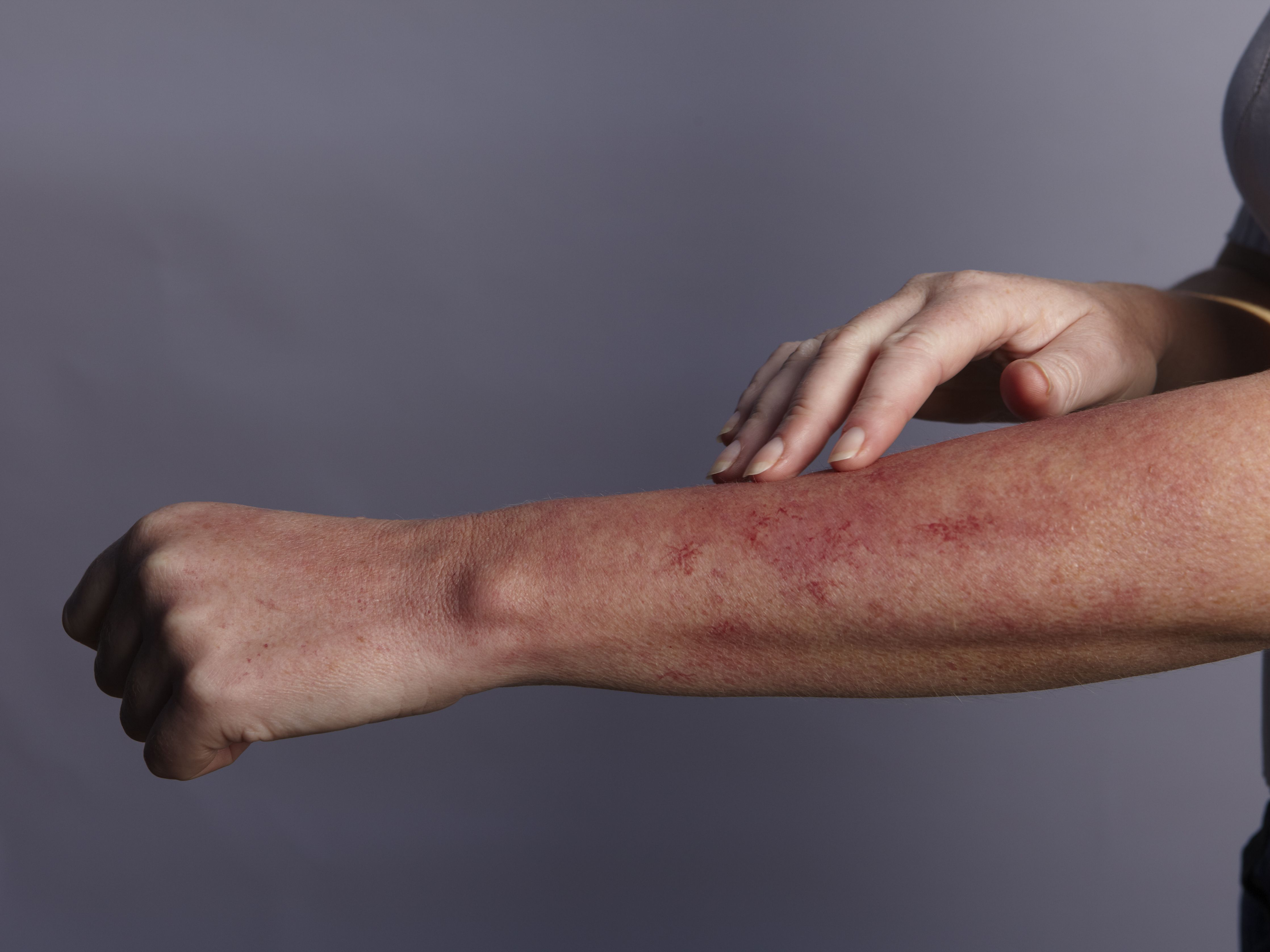 Mosquito Allergy: Symptoms, Diagnosis, and Treatments