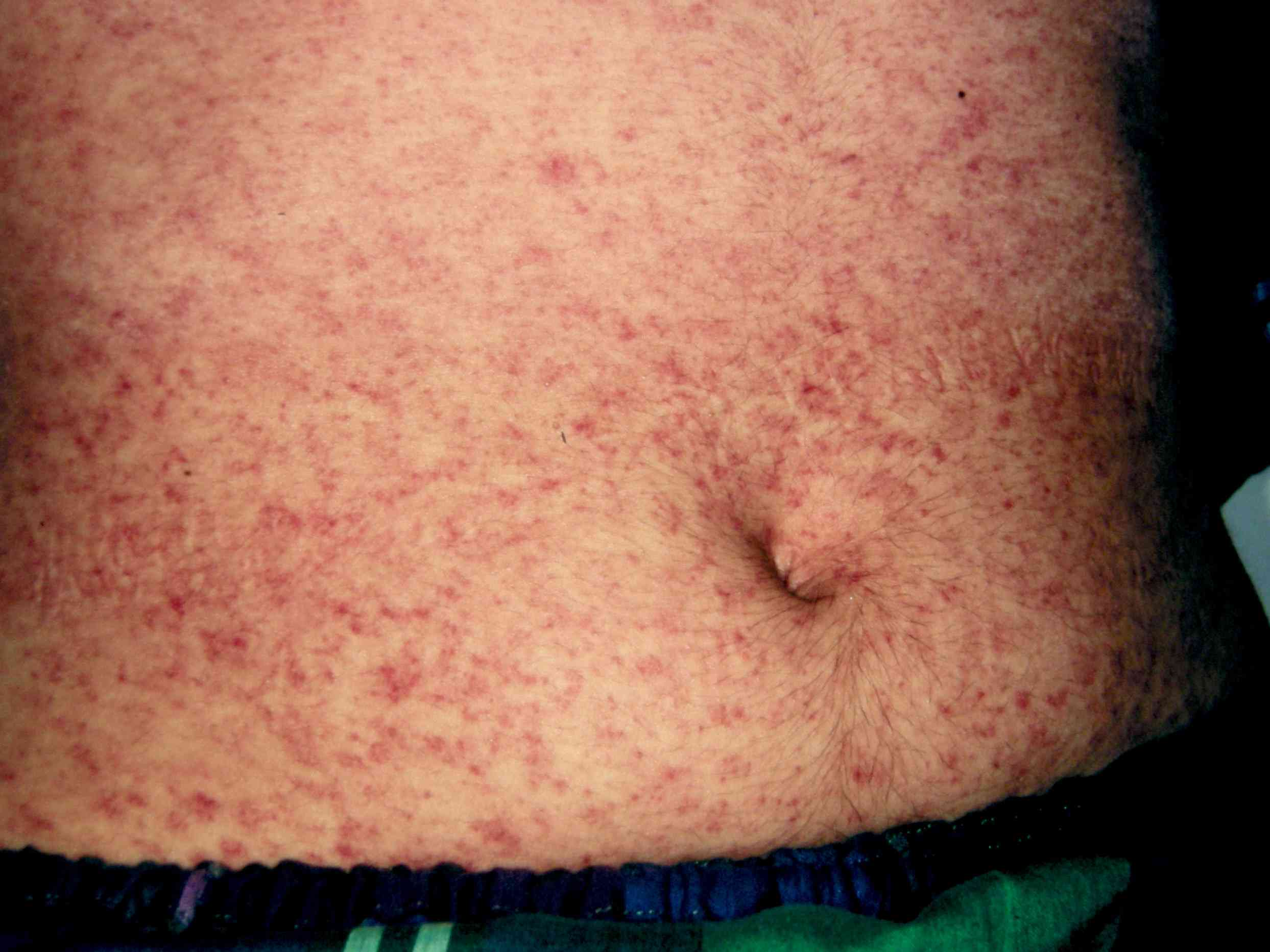 Exanthem from measles
