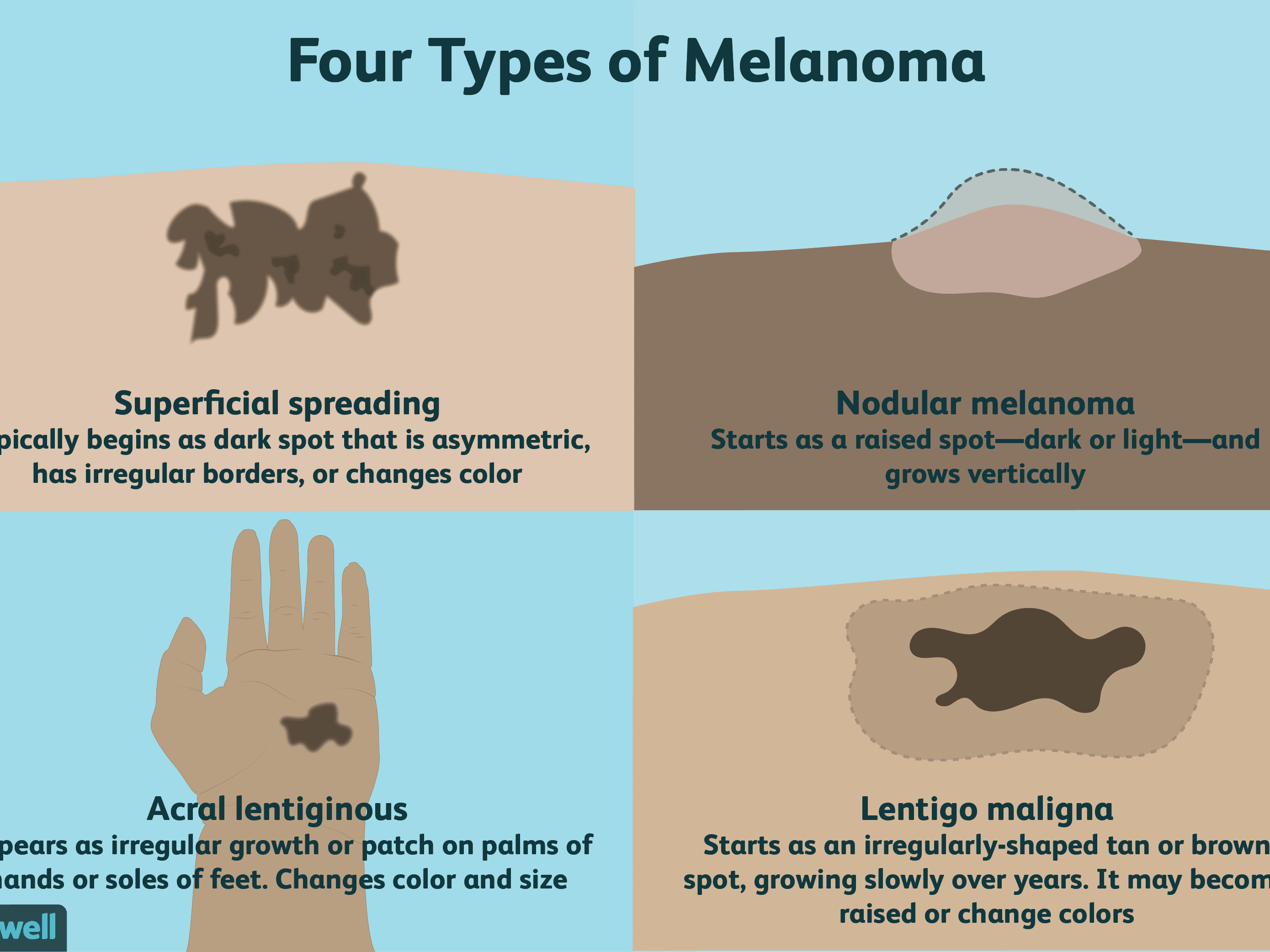 Melanoma Overview And More