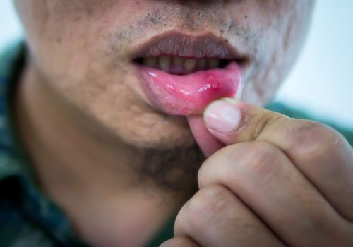 Man's lip with herpes lesion