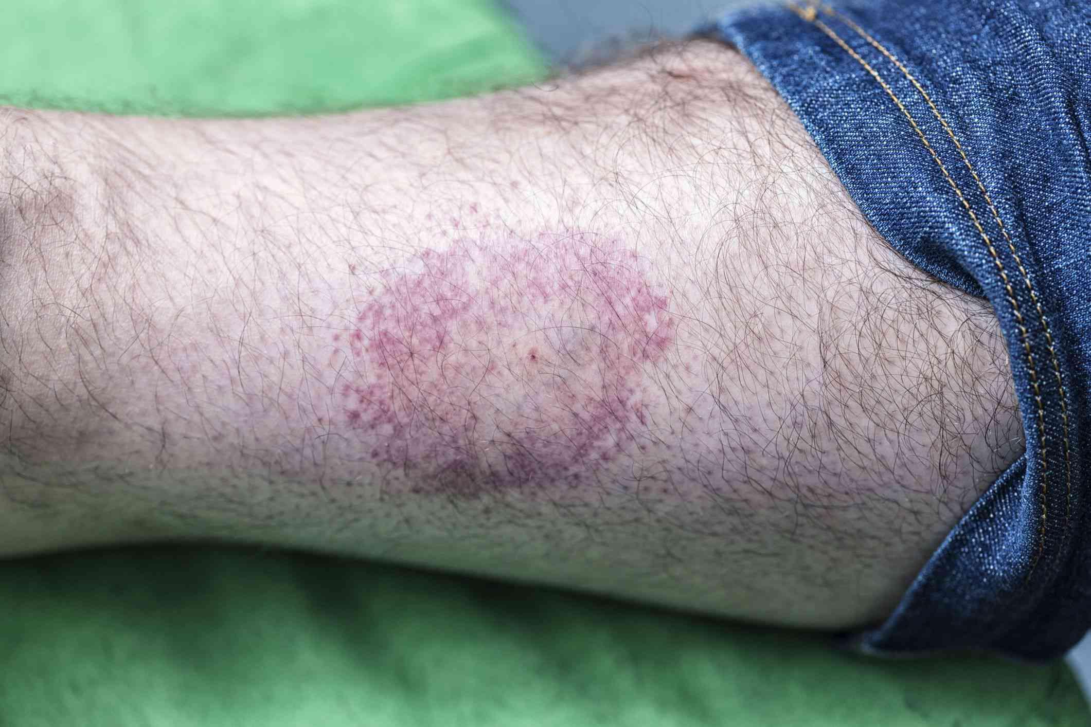 Lyme disease bullseye rash
