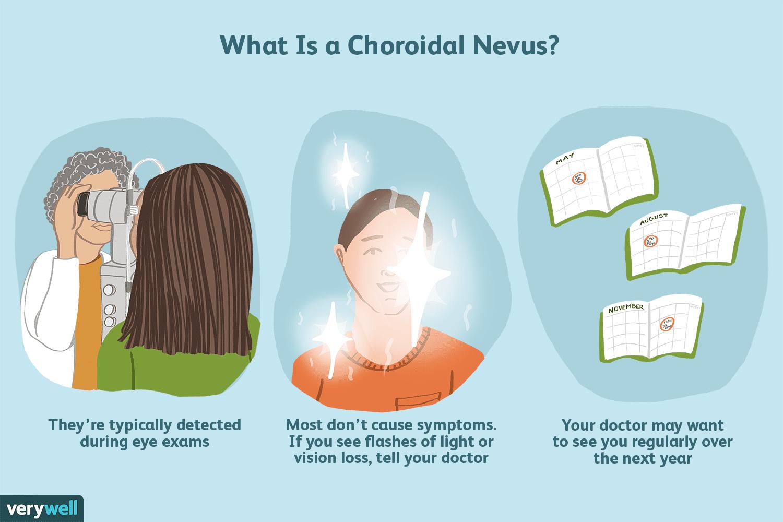 What is a choroidal nevus