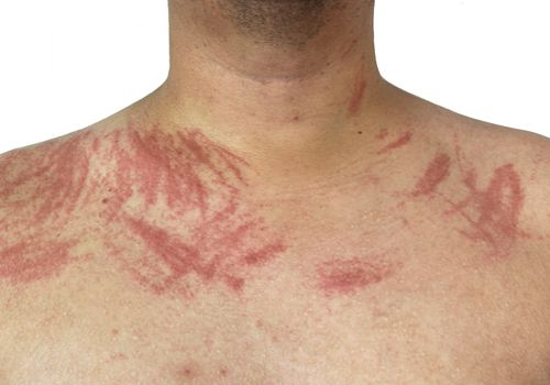 Dermatographia allergy on skin