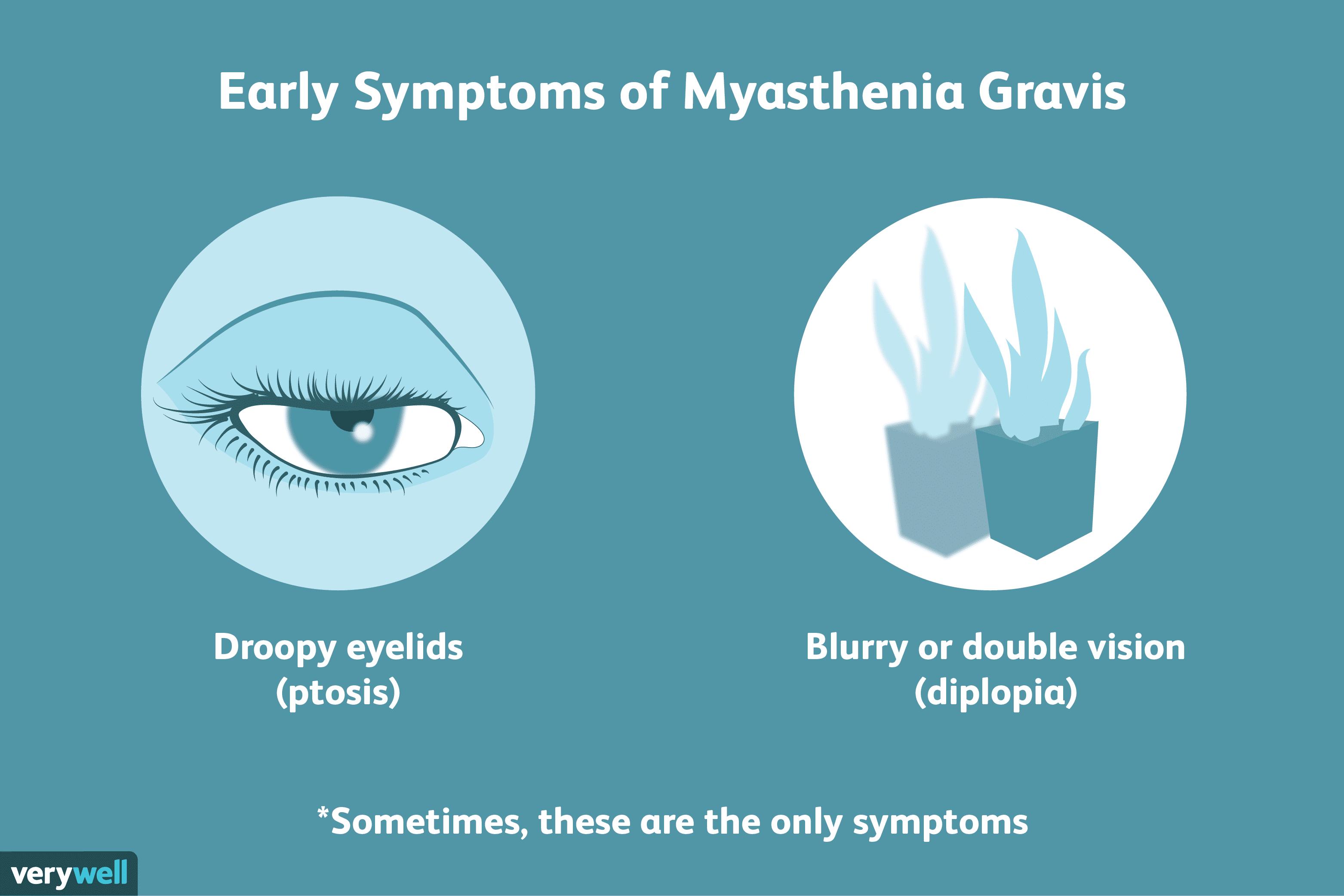 myasthenia gravis magas vérnyomás