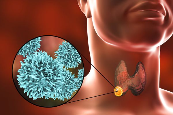 Papillary Thyroid Cancer