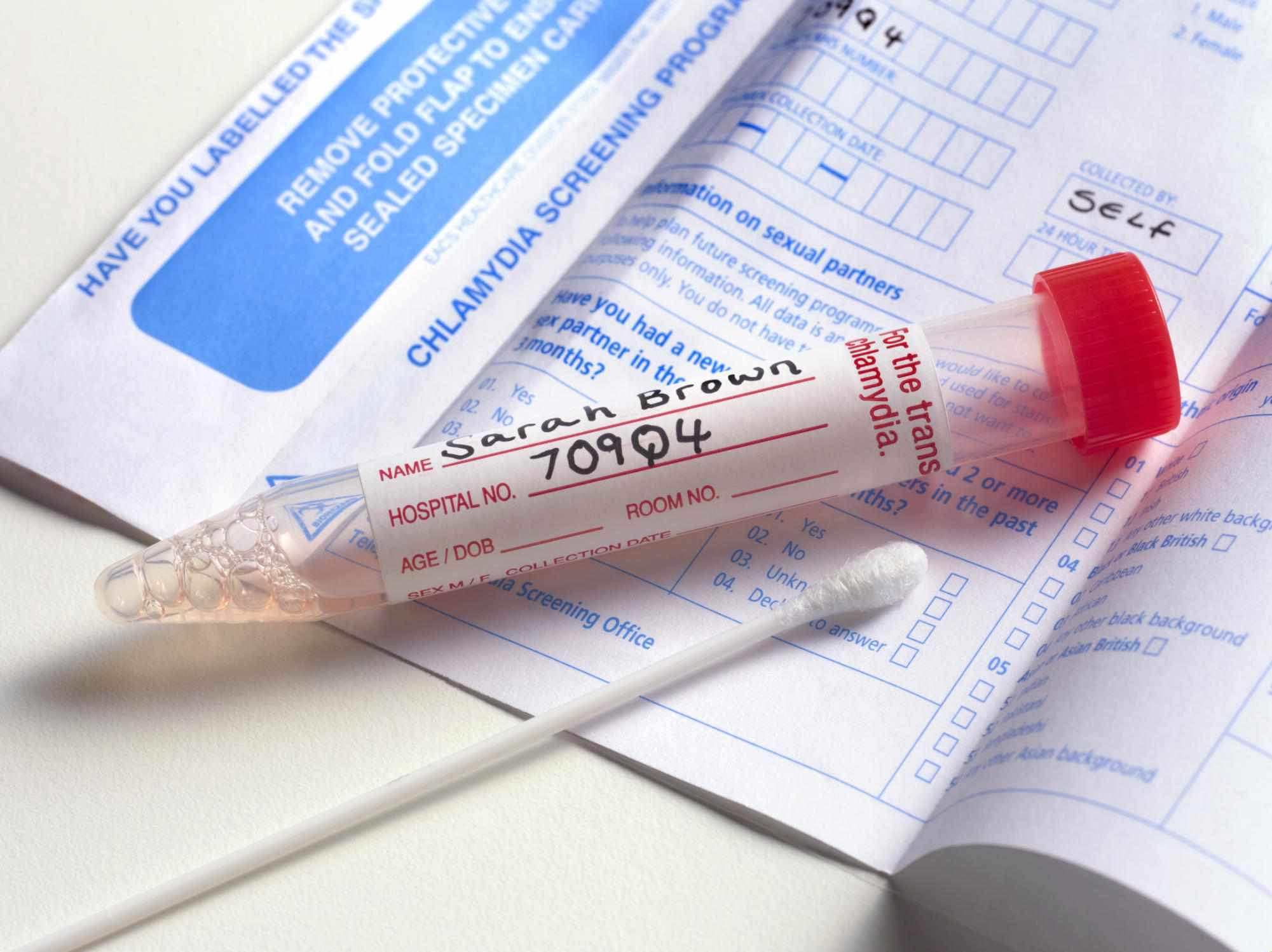 How Long Should I Wait for STD Testing?