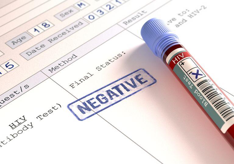 HIV blood tests, illustration