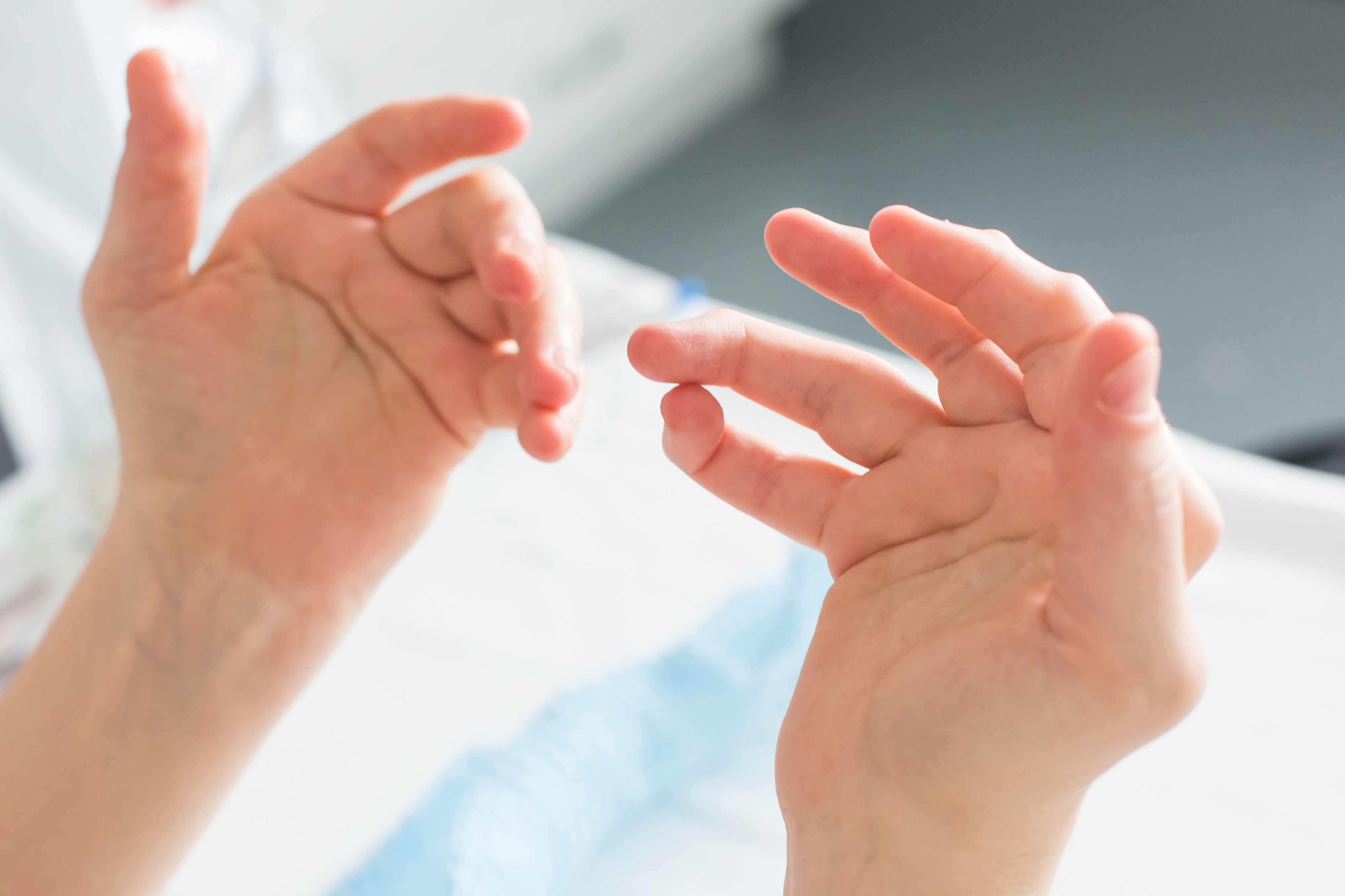 Hands of a woman with rheumatoid arthritis.
