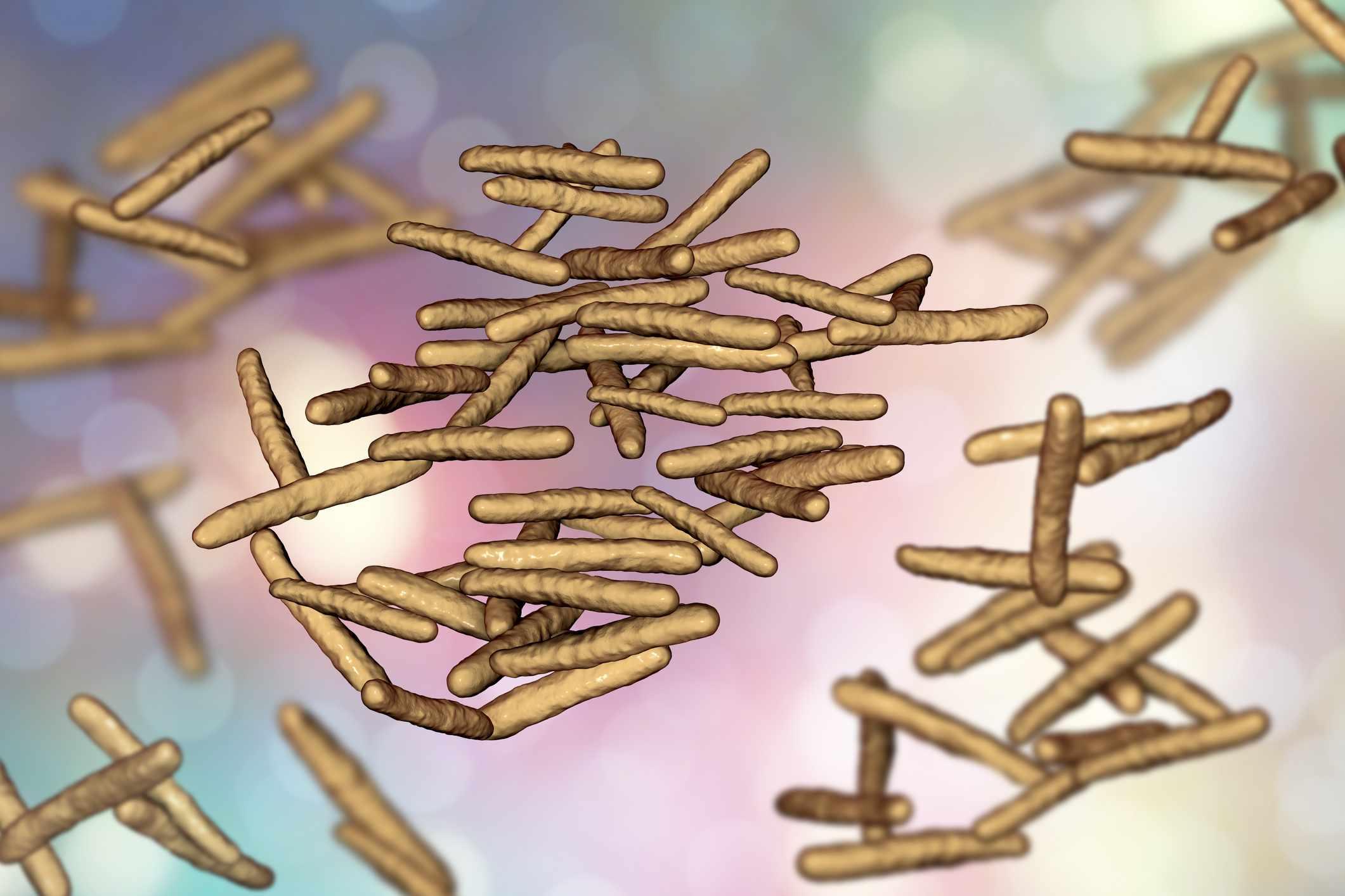 Mycobacterium avium intracellulare, a non-tuburculous mycobacterium
