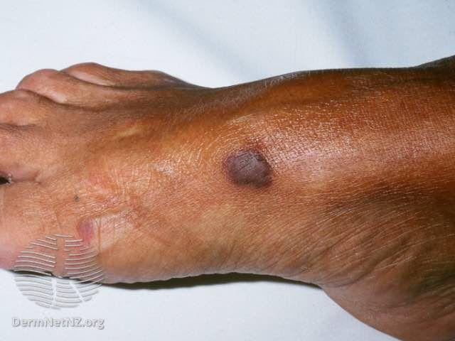kaposi sarcoma on foot