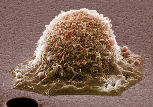 cervical cancer cell extreme closeup