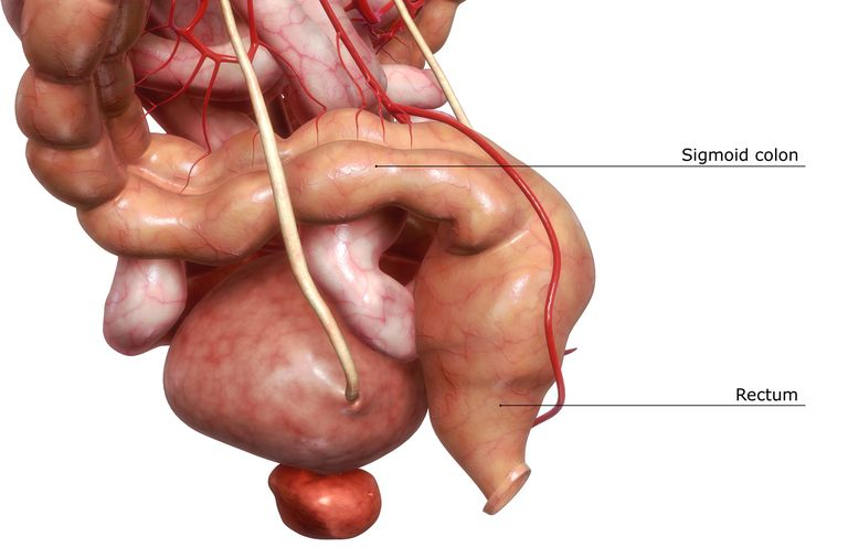 illustration highlighting the sigmoid colon and rectum