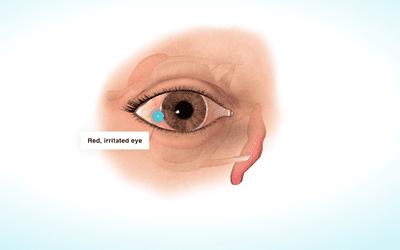 dry eye biodigital