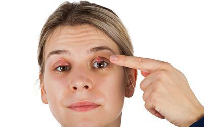 A finger pointing to a stye on a woman's lid. Also, a stye on the other lid as well.