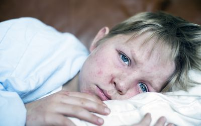 Incubation Periods Of Childhood Diseases