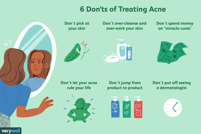 acne treatment mistakes