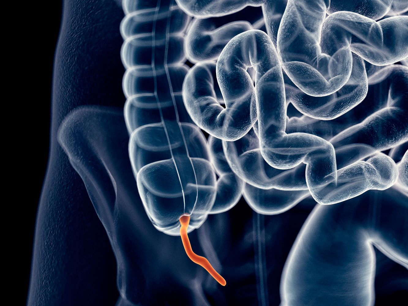 Appendix Pain: Causes, Treatment, and When to See a Doctor