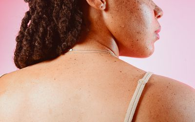 Portrait of a Young Womans Back with Freckles