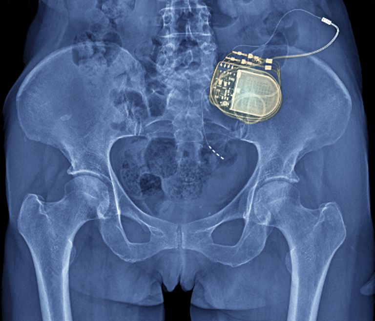 xray showing a neurostimulation device implanted in patient's back