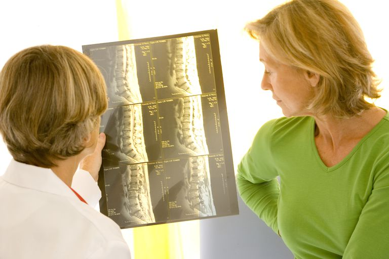 Doctor Showing MRI Image to Patient