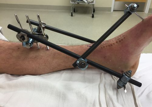 An external fixator applied to the leg of a patient after an ankle trauma injury.
