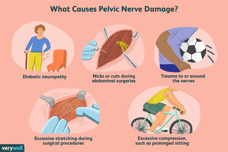 pelvic nerve damage causes