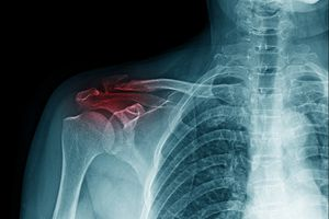 x-ray image of shoulder pain
