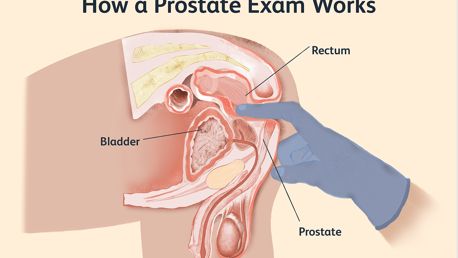 prostate exam what to expect