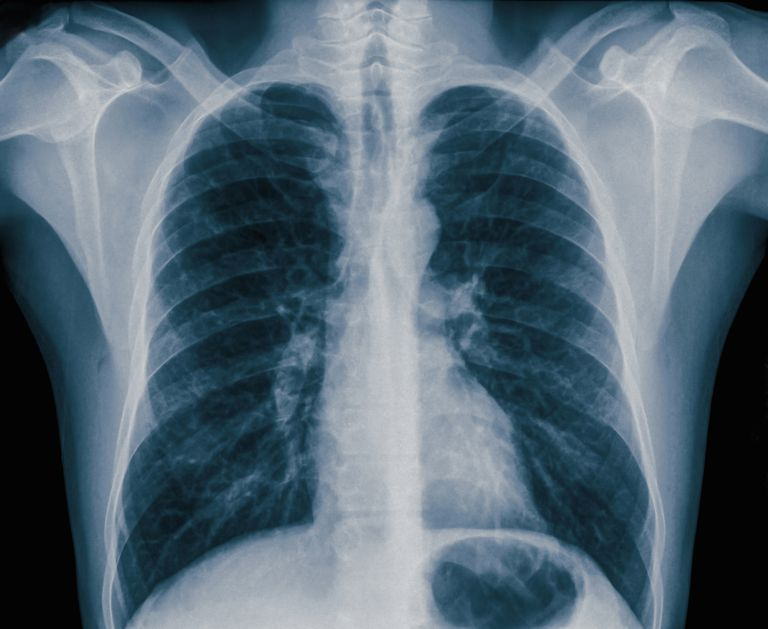 What Is Pneumothorax In The Lungs