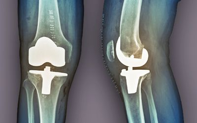 What Is Tricompartmental Osteoarthritis?