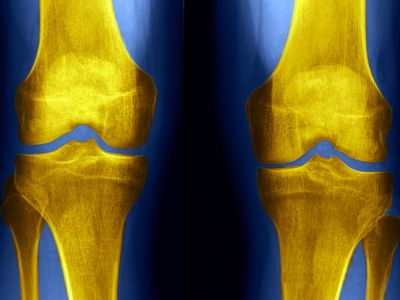 x-ray of someone's knees
