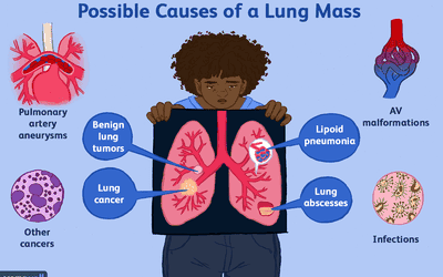 Multiple Lung Nodules: Causes and Diagnosis