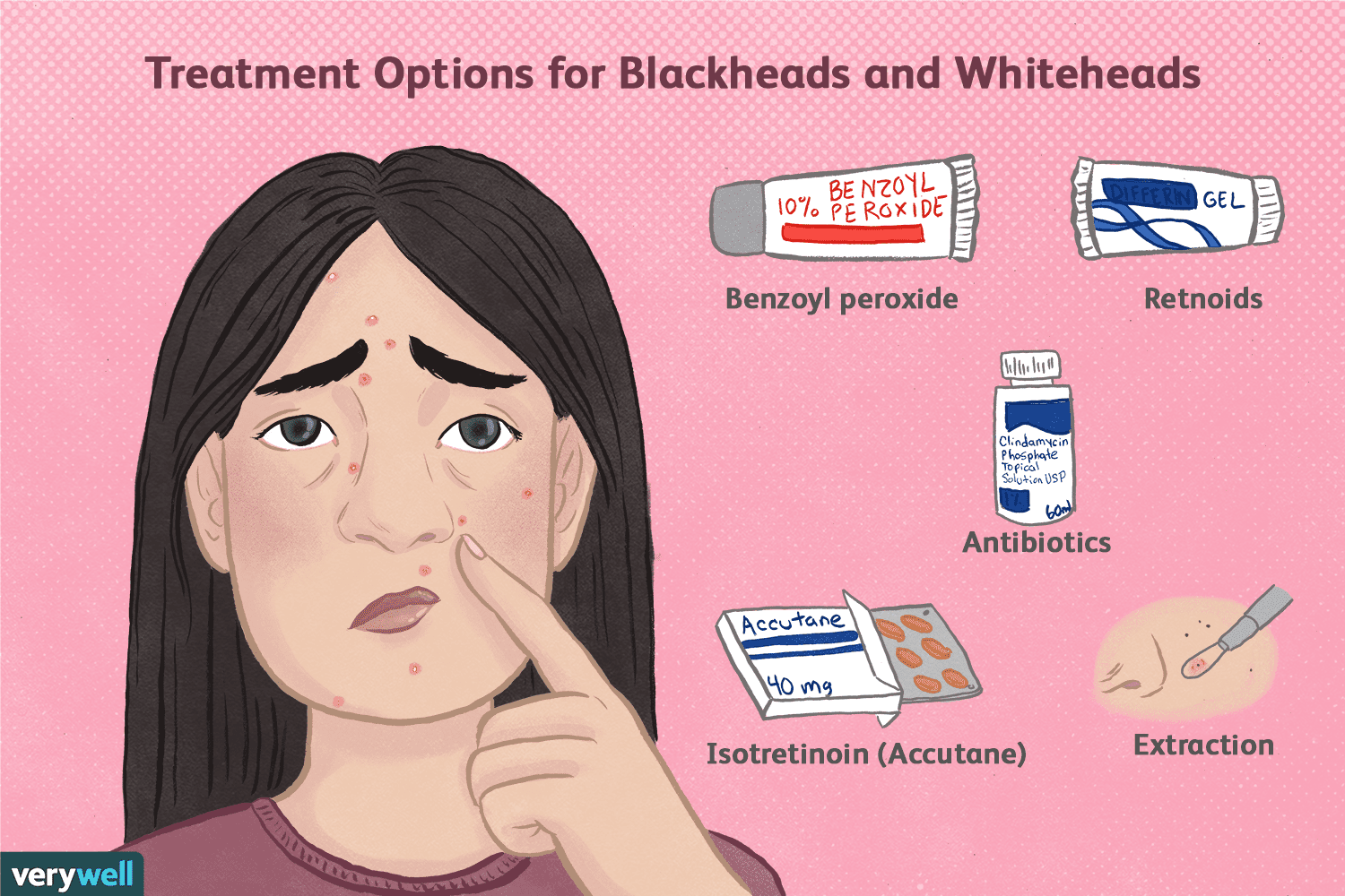 Blackheads and Whiteheads in Acne