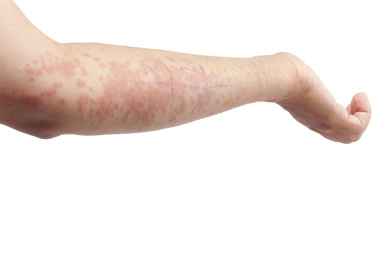 Vibratory angioedema is a form of hives.