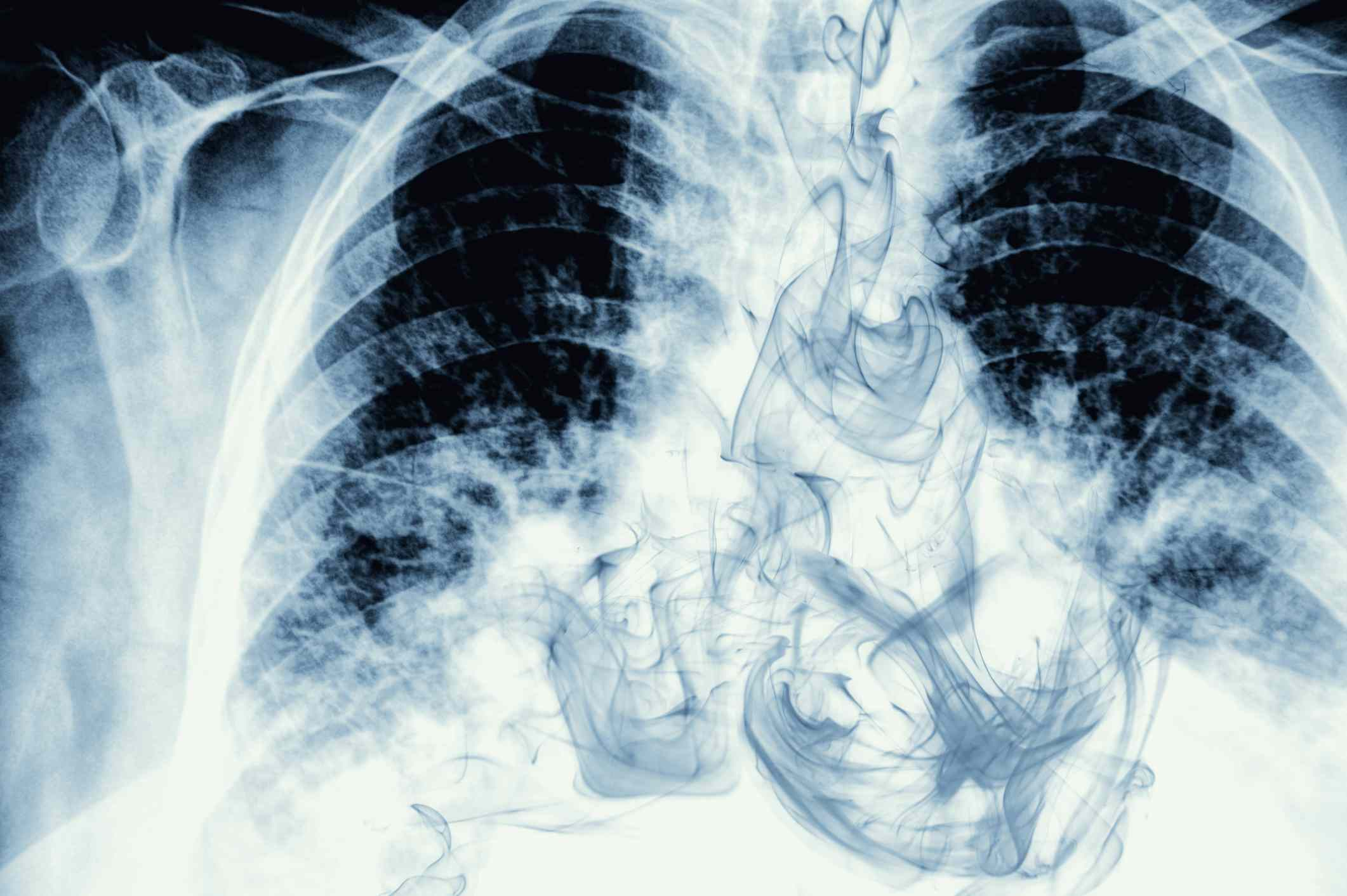 Chest X-ray showing smoke in the chest