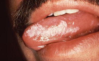 closeup of Oral hairy leukoplakia on a man's tongue