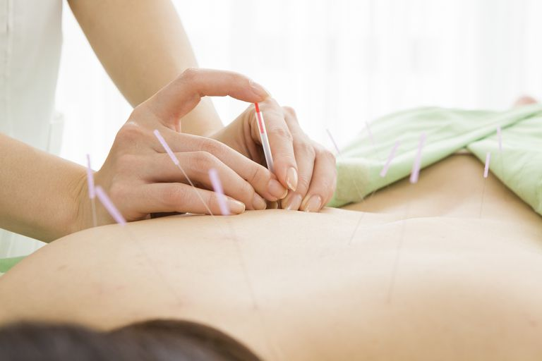 Person getting acupuncture treatment
