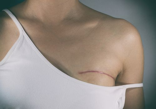 Woman showing mastectomy scar