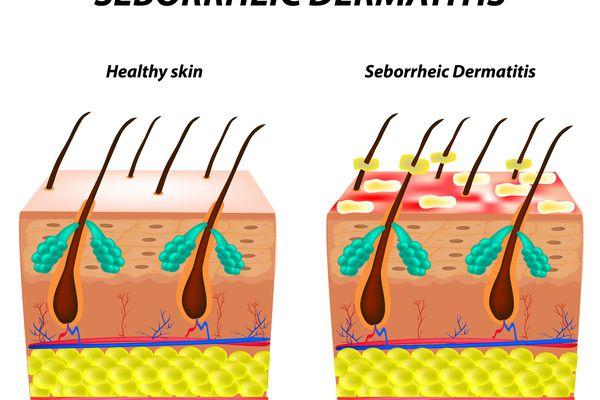What Seborrheic Dermatitis Looks and Feels Like