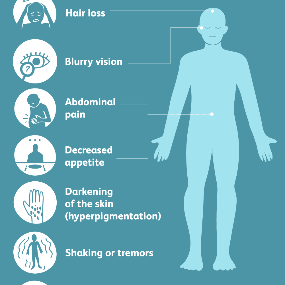 Addison's Disease: Symptoms, Cause, Diagnosis, Treatment