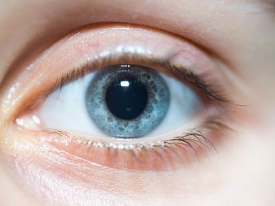 Blue eye with dilated pupil