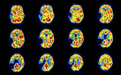How Long Does It Take for a Stroke to Heal?