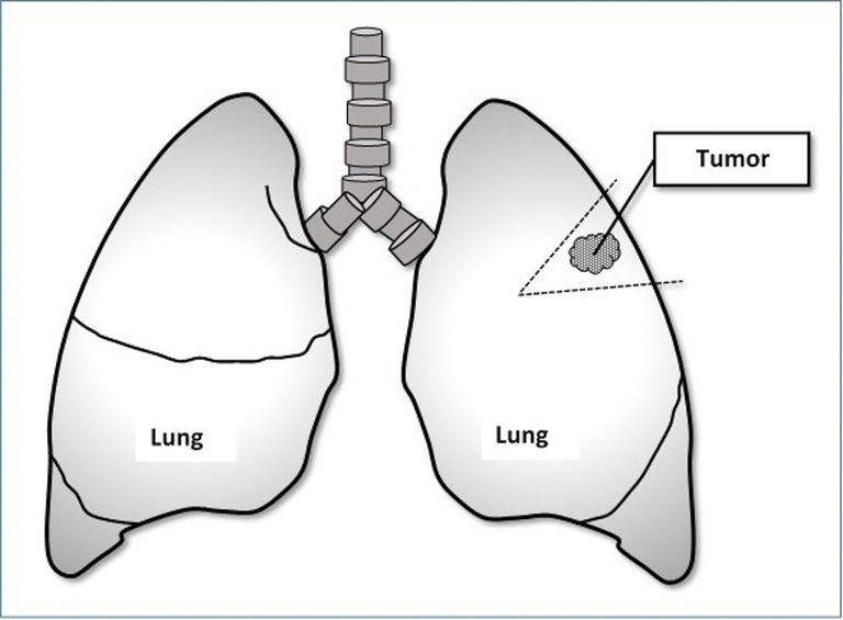 diagram of the lungs showing how a wedge resection removes a tumor
